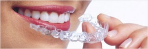 Traitement Invisalign